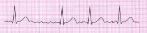 Tracciato ECG fibrillazione atriale
