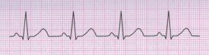 Tracciato ECG normale